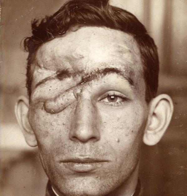 Гео Милев след раняването му на фронта 3(4). Държател Институт за литература – БАН